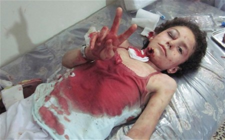 Syrian girl severely wounded by shelling